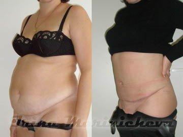 убрать жир с живота за неделю упражнения