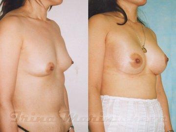 Может ли женщина кормить силиконовой грудью