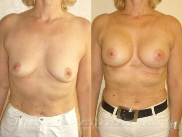Как выглядит силиконовая грудь 4 размера