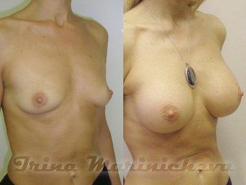 липосакция грудных желез