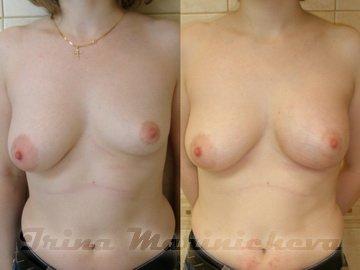 Корсет чтобы увеличить грудь