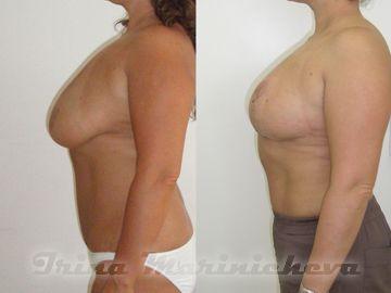 Увеличение груди в клинике ржд