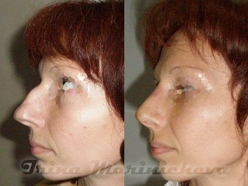 Нос стал толще после ринопластики